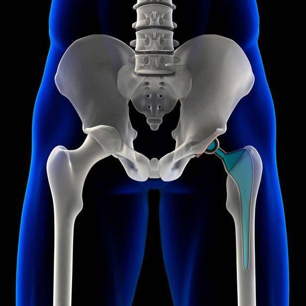 kalça protezinin ömrü