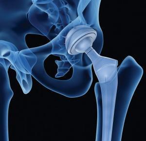 total kalça protezi nedir
